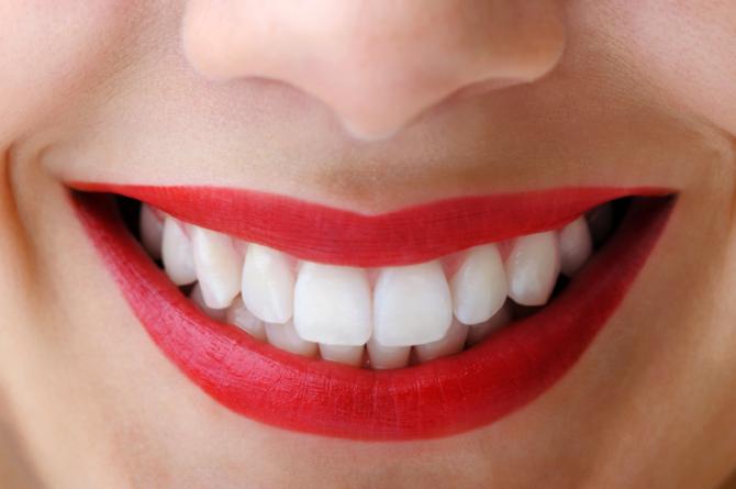 ¿Cómo conseguir unos dientes blancos y perfectos?
